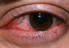 Jak chronić oczy podczas długotrwałych sesji przed ekranem?