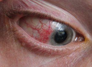 przekrwienie oczu
